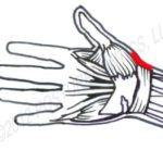 Wrist Pain in Dentistry